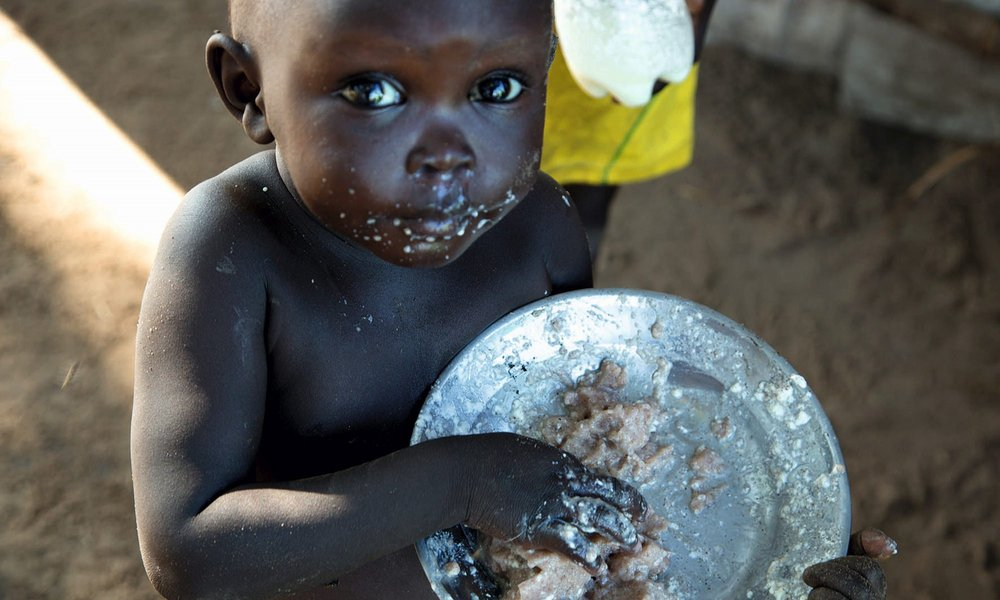 Starving child in South Sudan